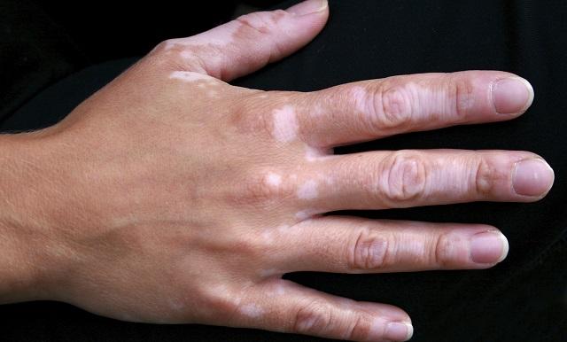 Пигментные пятна на руках