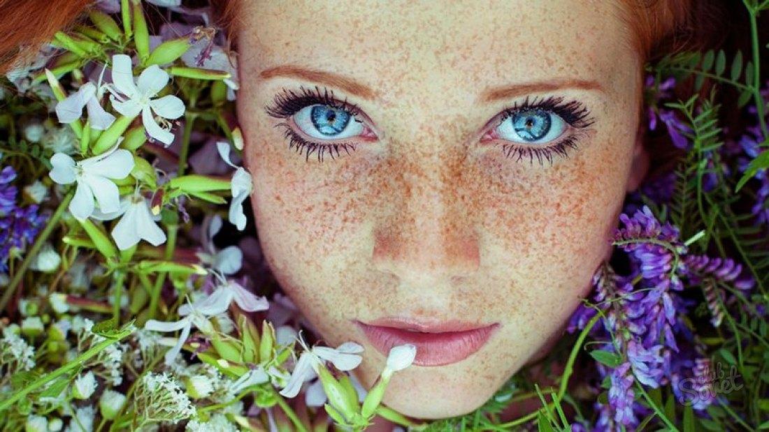 Фото - Избавляемся от веснушек. Получится ли избавиться от поцелуя солнца?