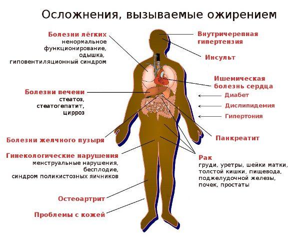 осложнения, вызываемые ожирением