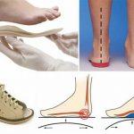 Фото - Как выбрать детскую ортопедическую обувь?