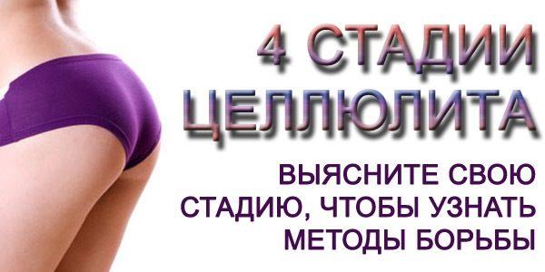 4 стадии
